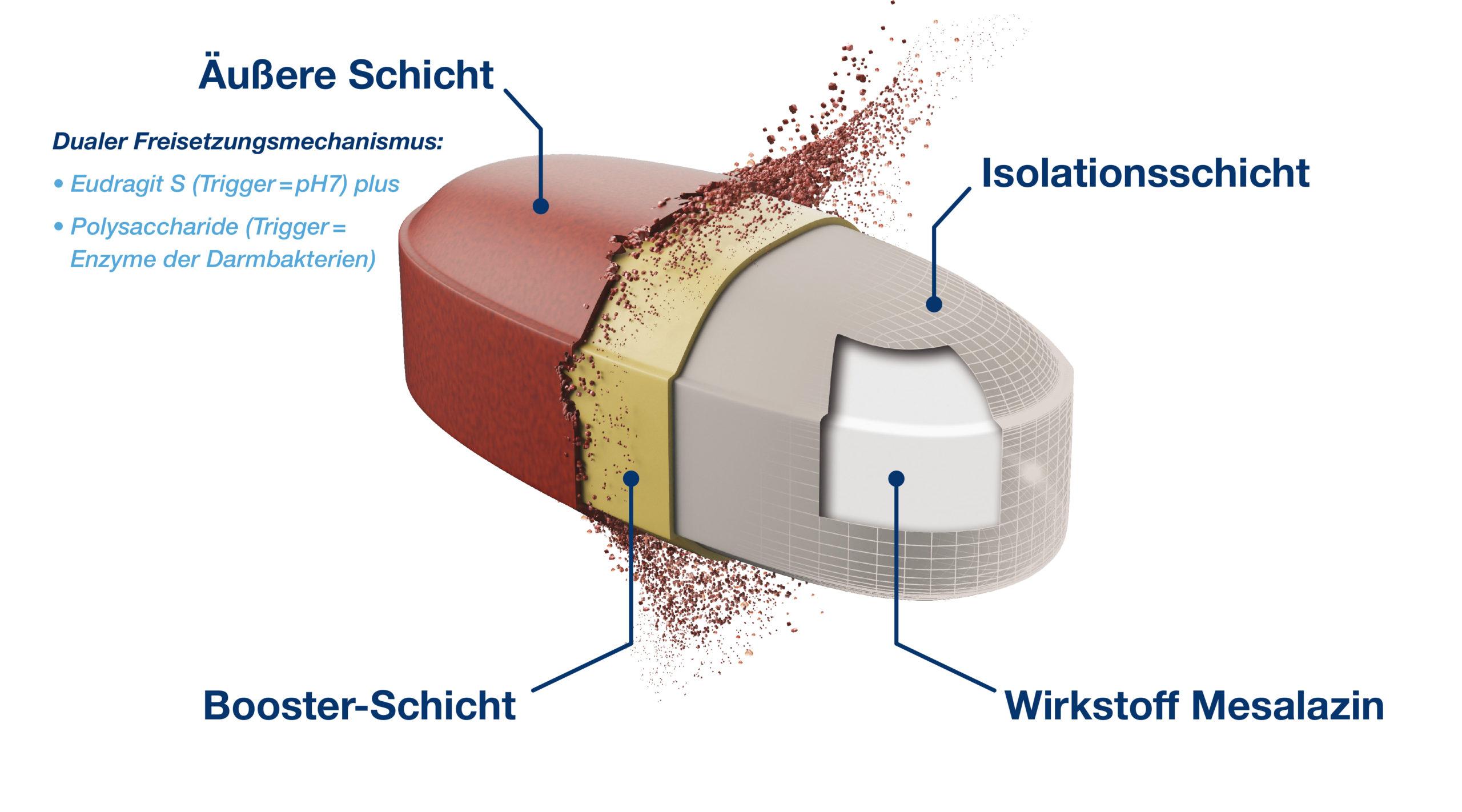 Colitis ulcerosa: So funktioniert bei Asacol<sup>®</sup> 1600 mg die OPTICORE<sup>TM</sup>-Technologie von Tillotts zur Freisetzung der hohen Mesalazin-Dosis im gesamten Kolon